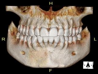 Tomografía Odontológica 3D